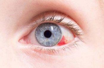 Глаз покраснел капилляр лопнул что капать