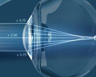 Что такое скотома глаза