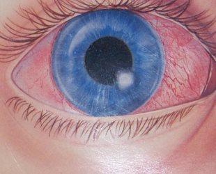 Что такое кератит глаза