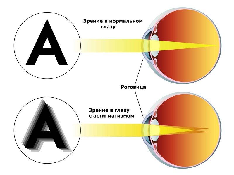 астигматизм зависимость сосудов светобоязнь близорукость