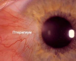Лечение птеригиума глаза
