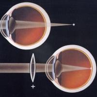 гиперметропия глаз