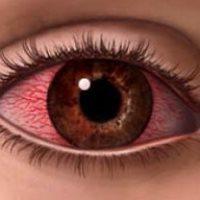 причины покраснение глаз