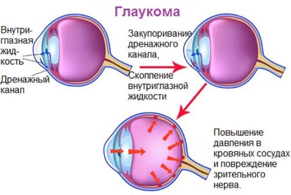 Люксфен  глазные капли