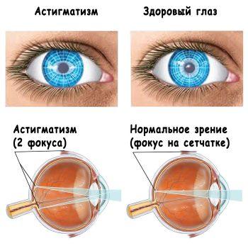 Тесты на проверку зрения на астигматизм