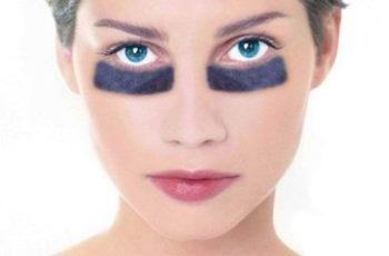 Причины и лечение синяков под глазами.