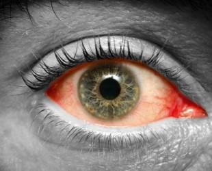 От чего краснеют глаза?