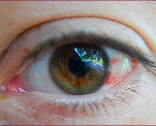 Кровь в глазном яблоке: особенности состояния, лечение